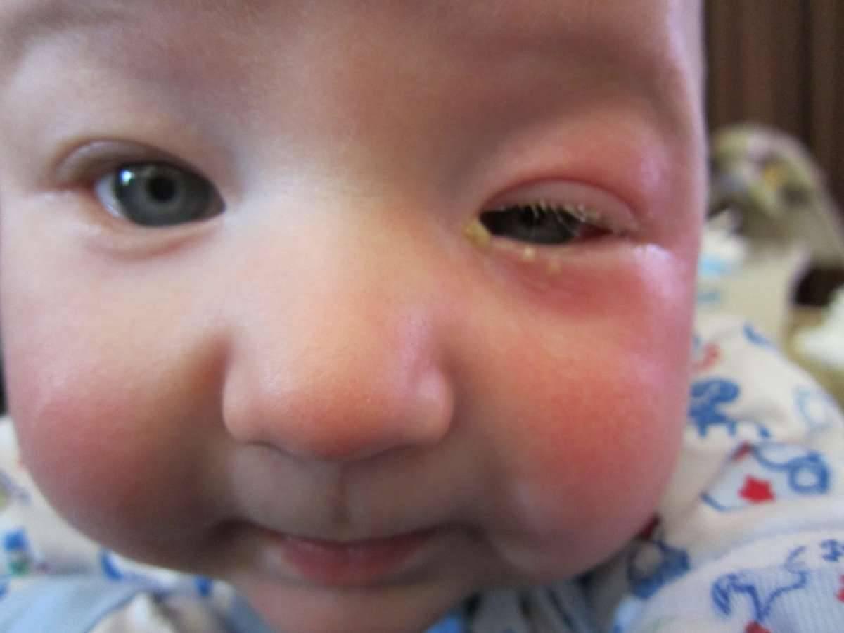 Жёлтые выделения из глазика - запись пользователя tatti (id837510) в сообществе здоровье новорожденных в категории болезни глаз - babyblog.ru