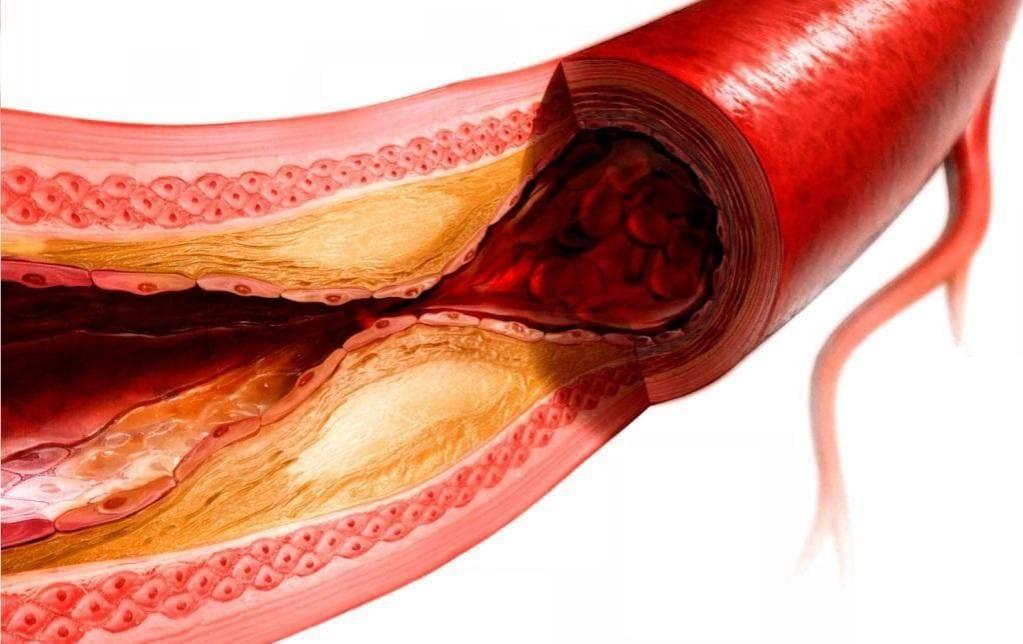 атеросклероз артерий окклюзия