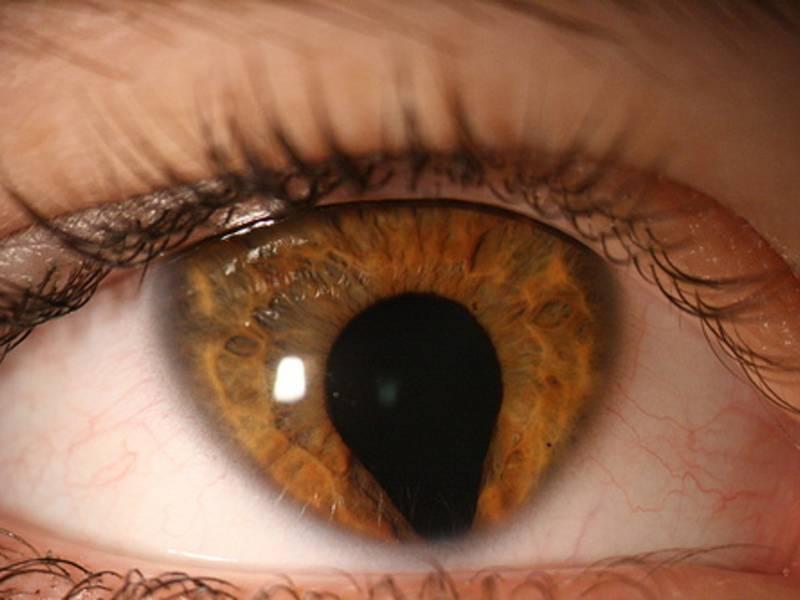 врожденная колобома радужки глаза