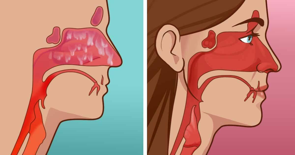 Как остановить кровь из носа — пошаговая инструкция