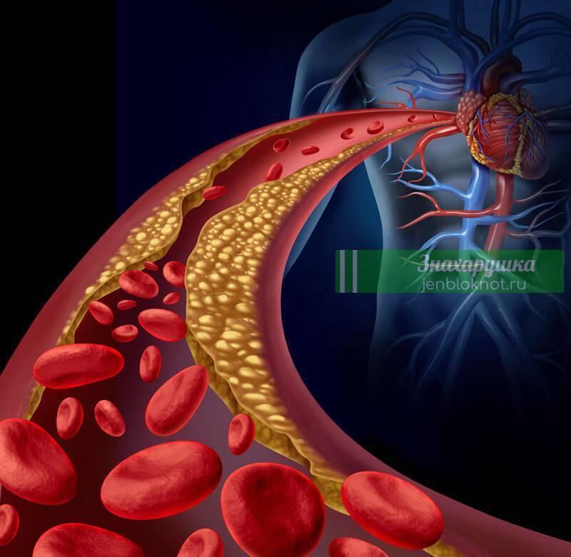 атеросклероз народное лечение чесноком