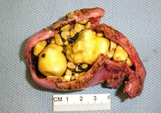 Признаки панкреатита и холецистита и их лечение