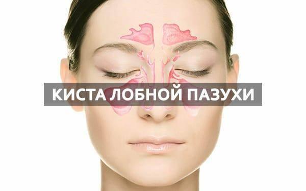 Киста в носу: разновидности и варианты лечения