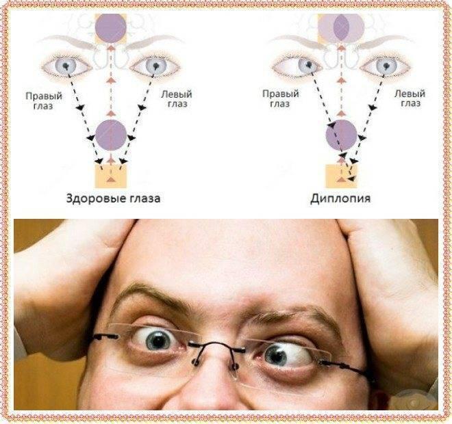 При каком заболевании двоится в глазах