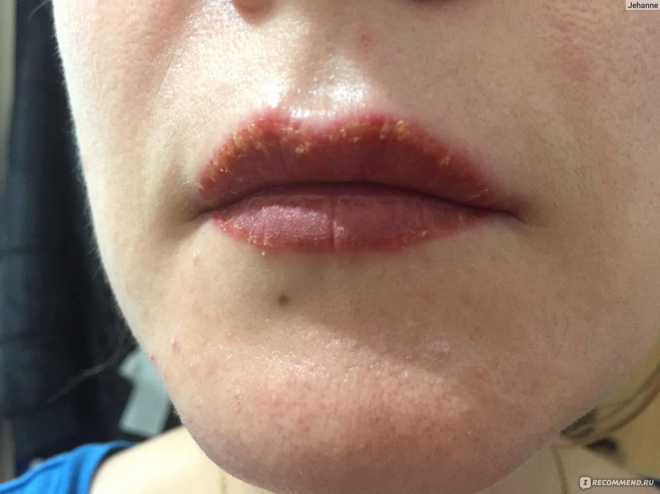 Появление пятен на губах после герпеса – лечение