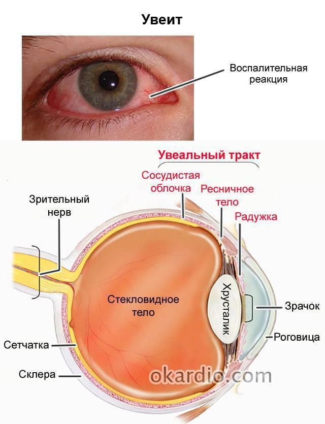 глазная болезнь увеит