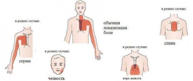 боль в сердце или невралгия