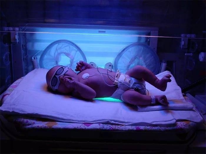 фотолампа для лечения желтухи у новорожденных