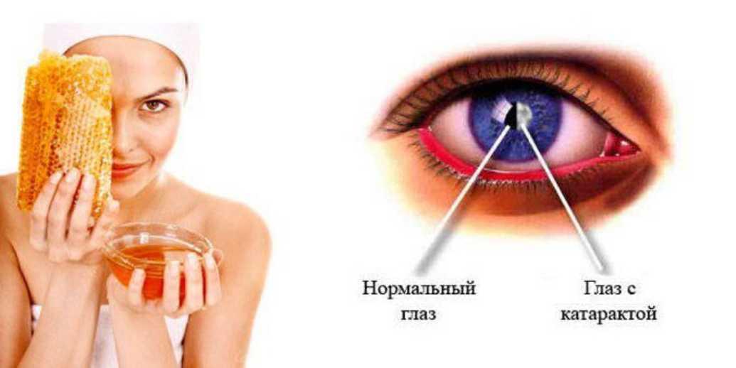 Лечение заболеваний глаз с помощью меда
