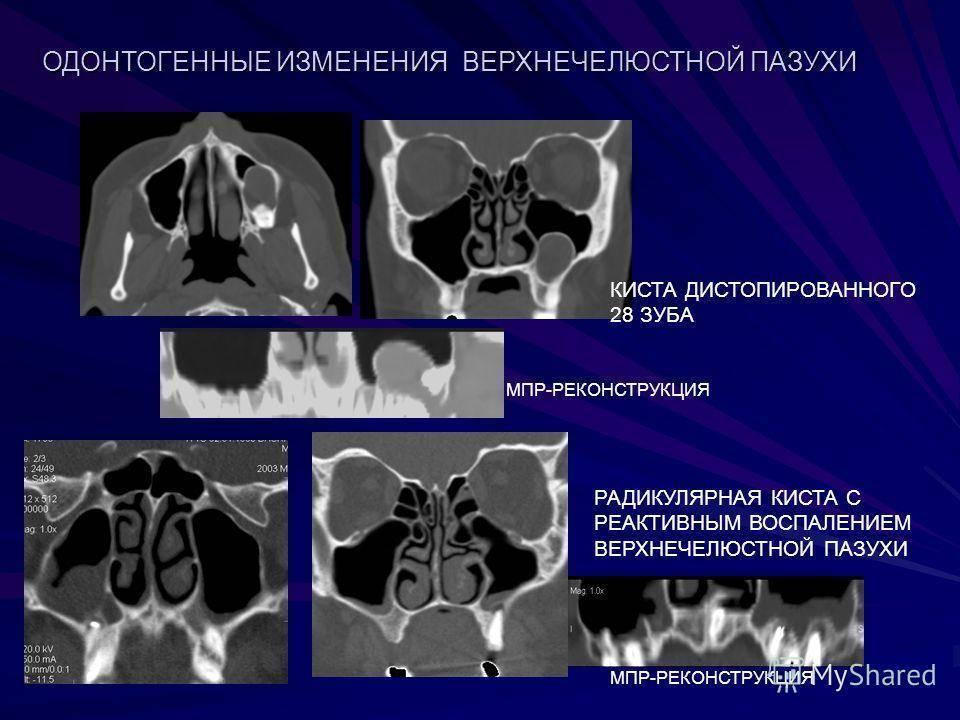 Кисты, полипы околоносовых пазух. одонтогенный гайморит: симптомы, причины, лечение
