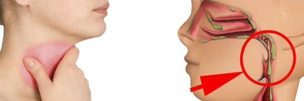 Сухость в носу и корочки – причины какой болезни, что делать?