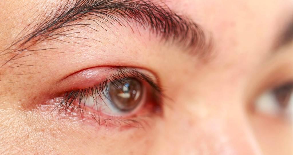 ячмень на глазу как лечить при беременности