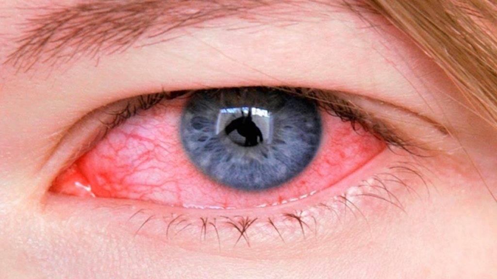 Лечение вирусного конъюнктивита без всяких осложнений
