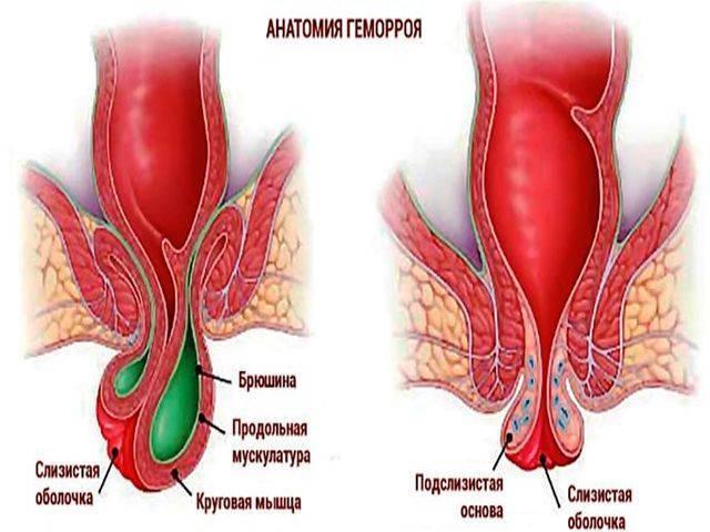 Тромбоз геморроидальных узлов - лечение