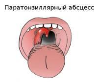 паратонзиллит симптомы