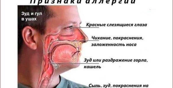 щекочет в носу и чихаю