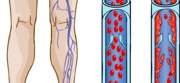 Лечение атеросклероза - медицинский портал eurolab
