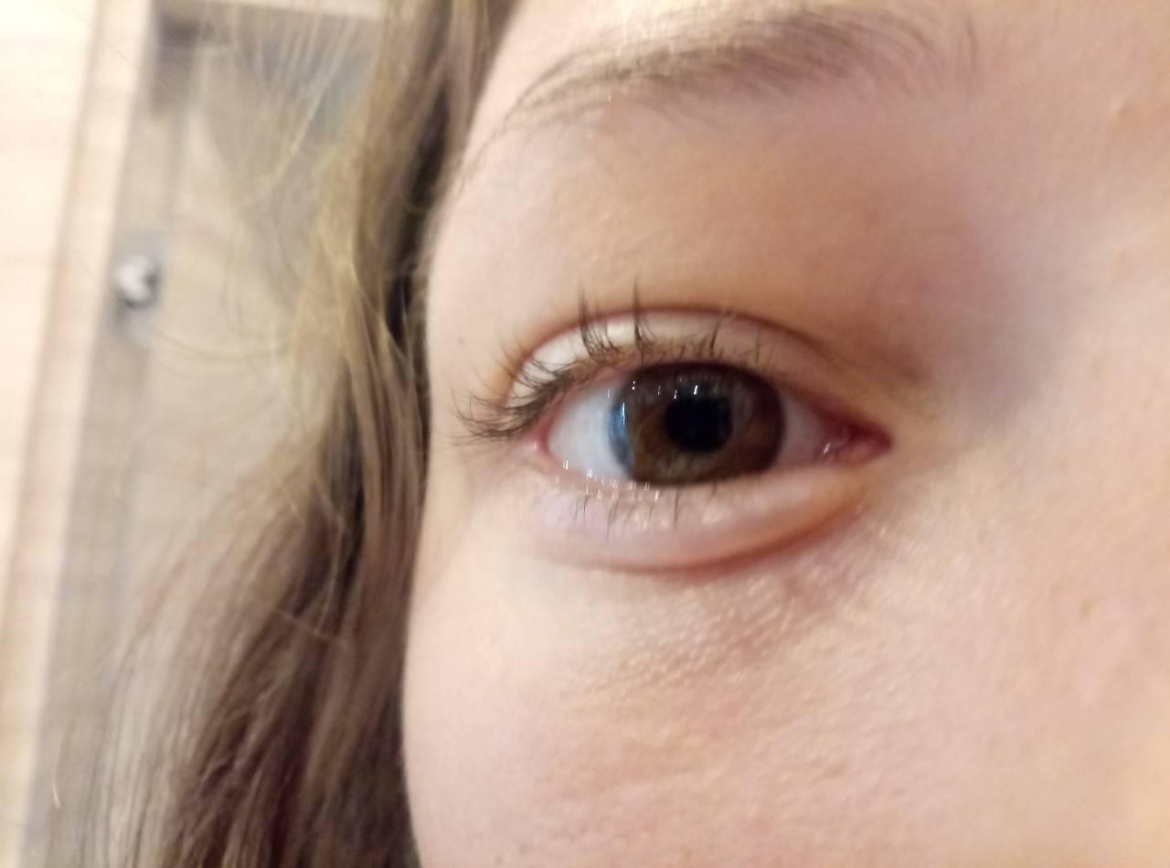 Почему болят веки под глазами