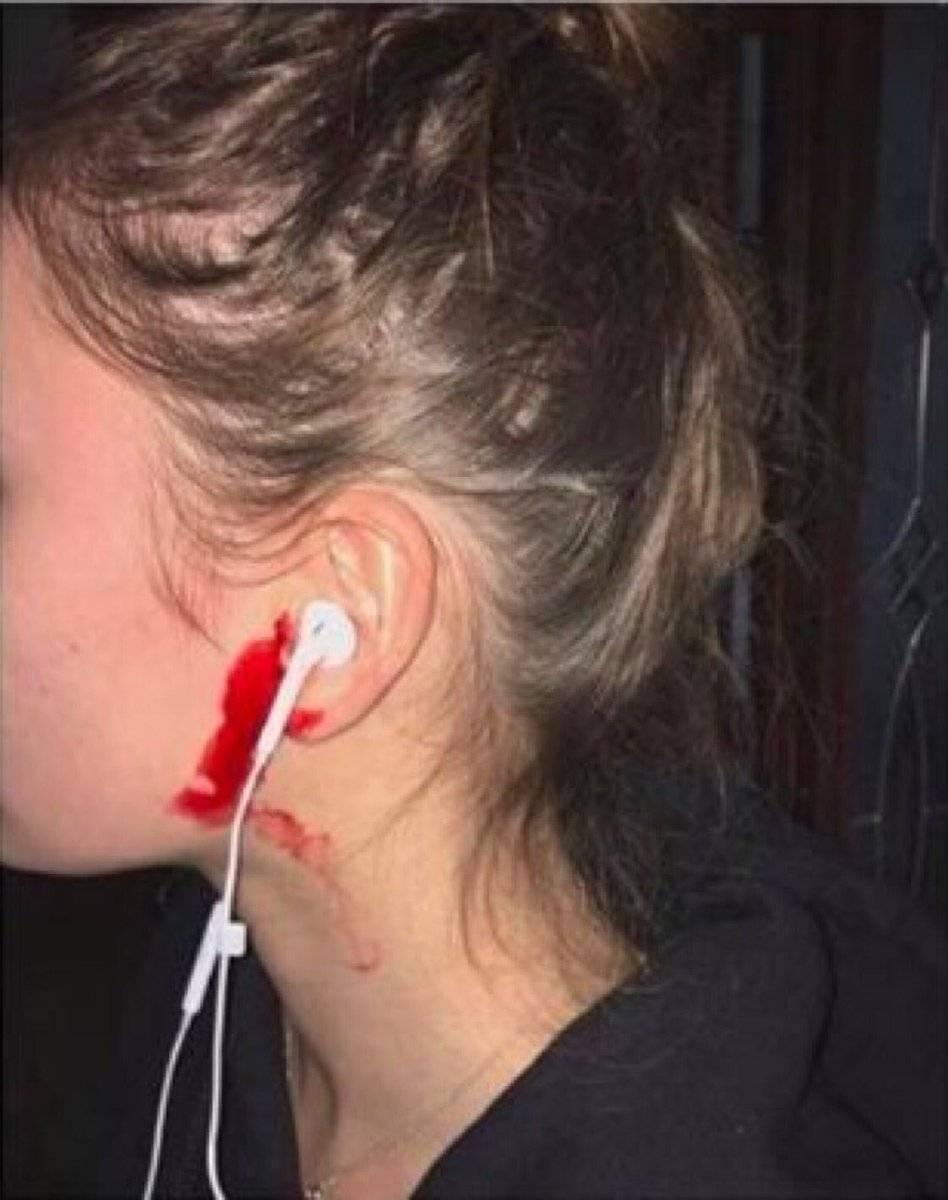 кровь и гной из уха