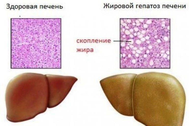 Ожирение печени: как лечить