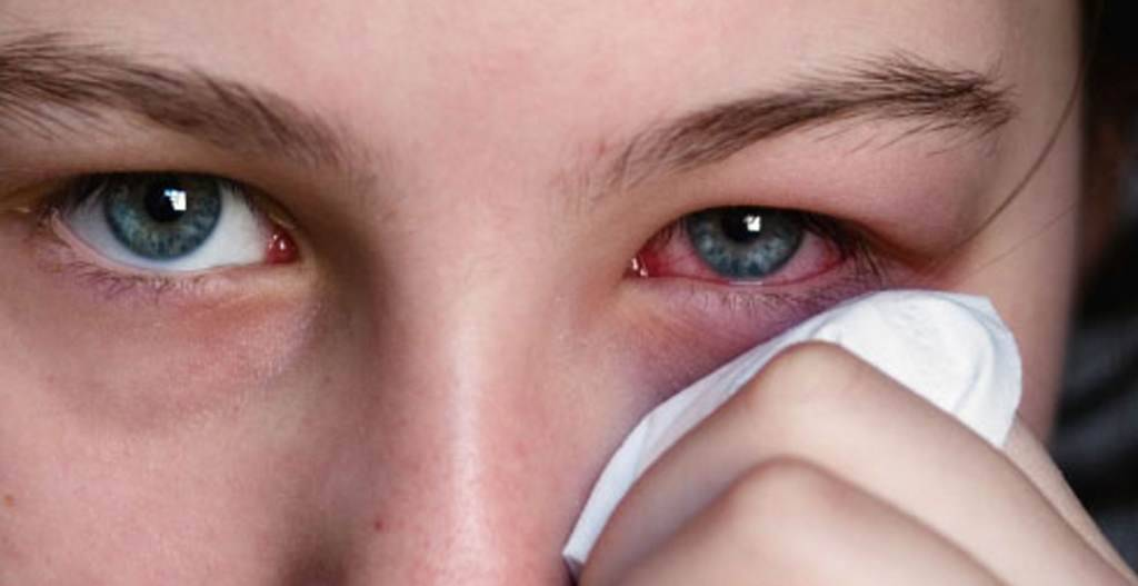 почему глаза слезятся и краснеют