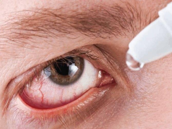 От чего болят глаза после бани