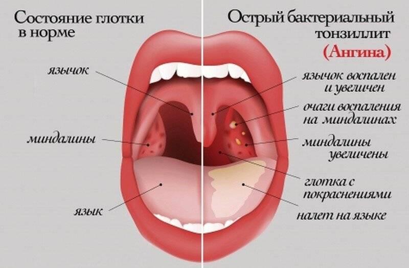 Ангина: заразна или нет для окружающих, сколько дней