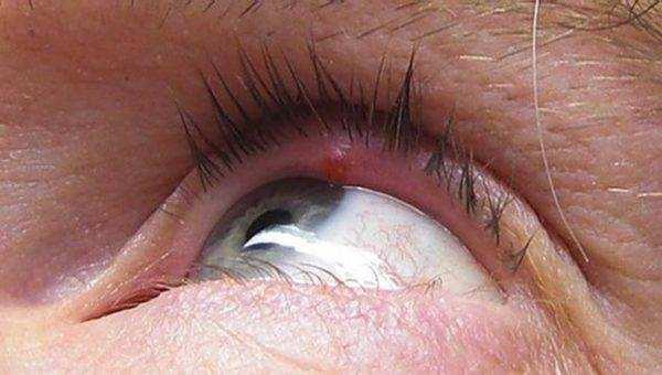 Частые рецидивирующие ячмени на глазах: истинные причины