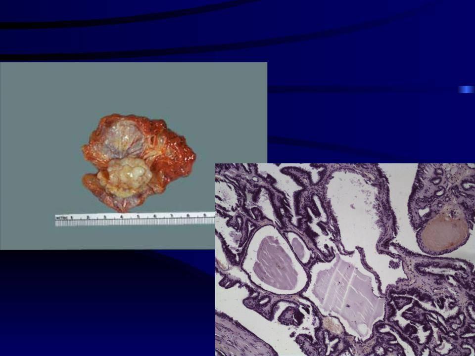 Внутрипротоковая папиллома молочной железы — чем опасна патология