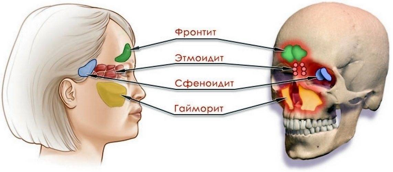 Лечение правостороннего фронтита