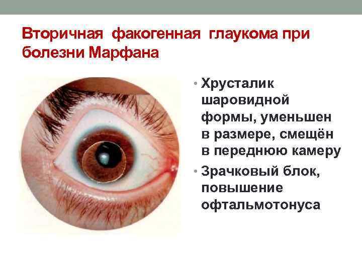 Вторичная глаукома - что это такое: лечение и основные причины