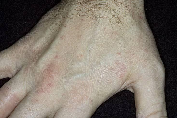 Норвежская чесотка: симптомы, лечение и профилактика | derma-expert.ru