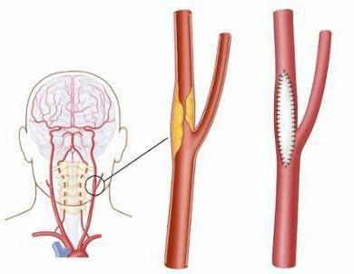Операции на сонных артериях: показания, виды, проведение, результат