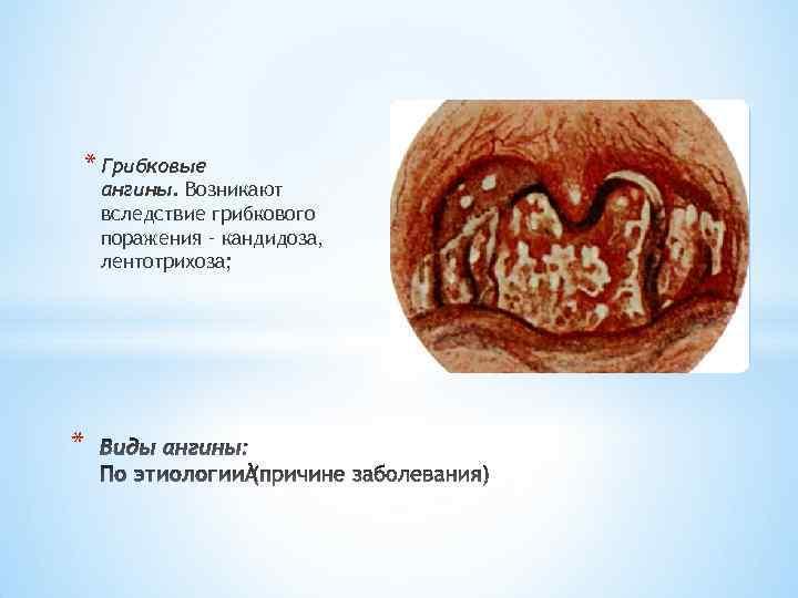 Кандидоз горла - как проявляется, причины, симптомы, лечение