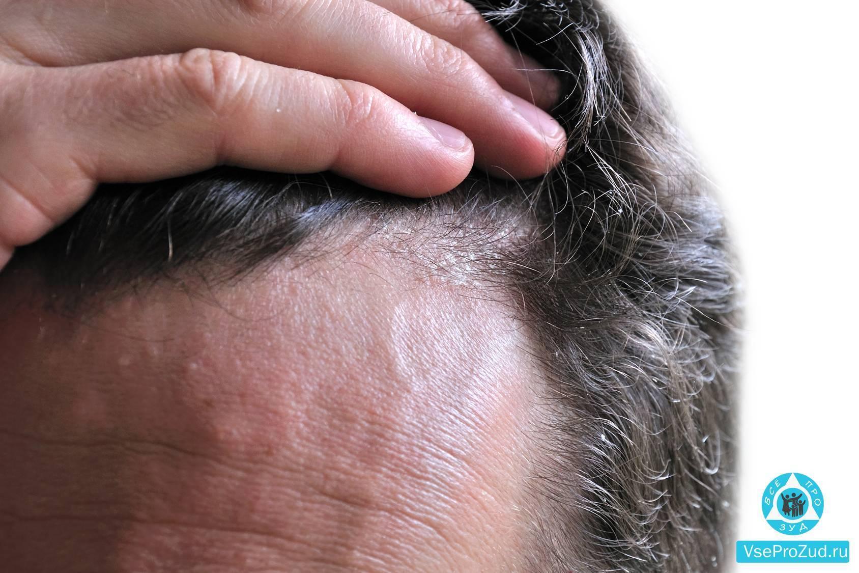 Демодекоз кожи головы: симптомы и лечение