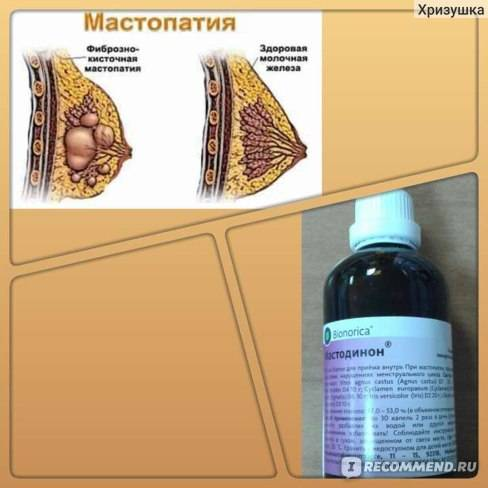 витамины при мастопатии фиброзно кистозной