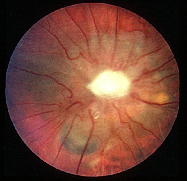 атрофия зрительного нерва инвалидность