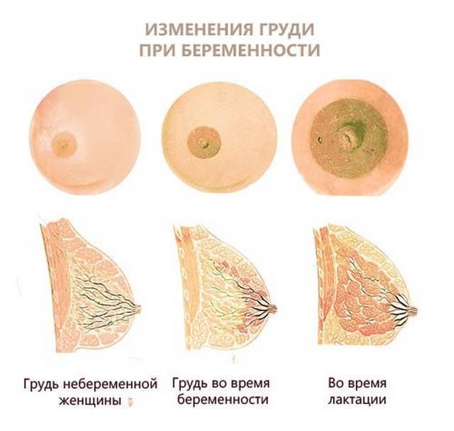 увеличилась грудь и болит