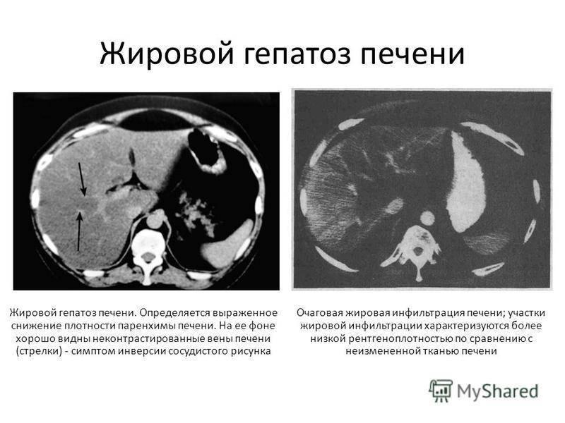 диффузный гепатоз печени
