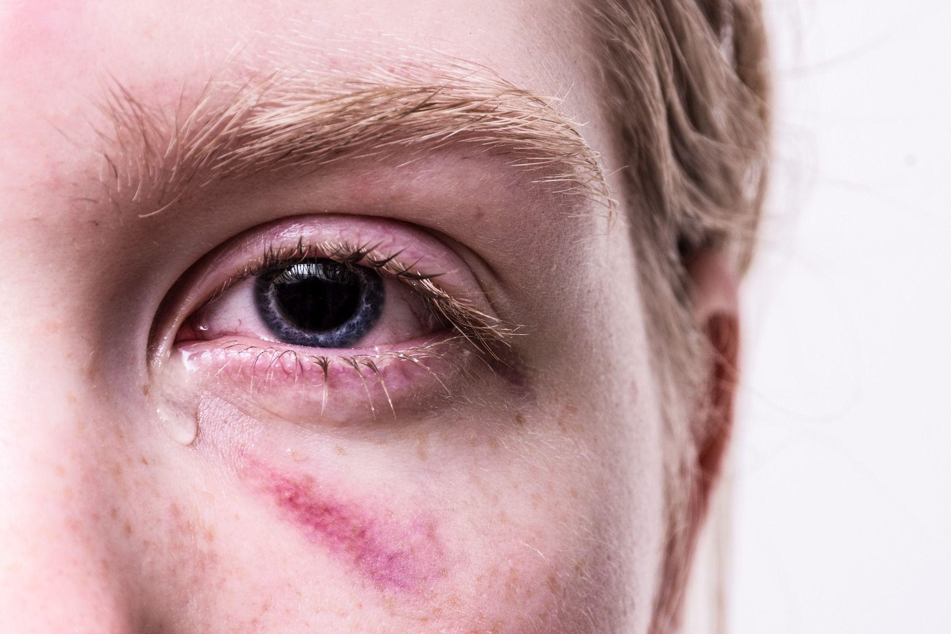Как быстро убрать синяки под глазами