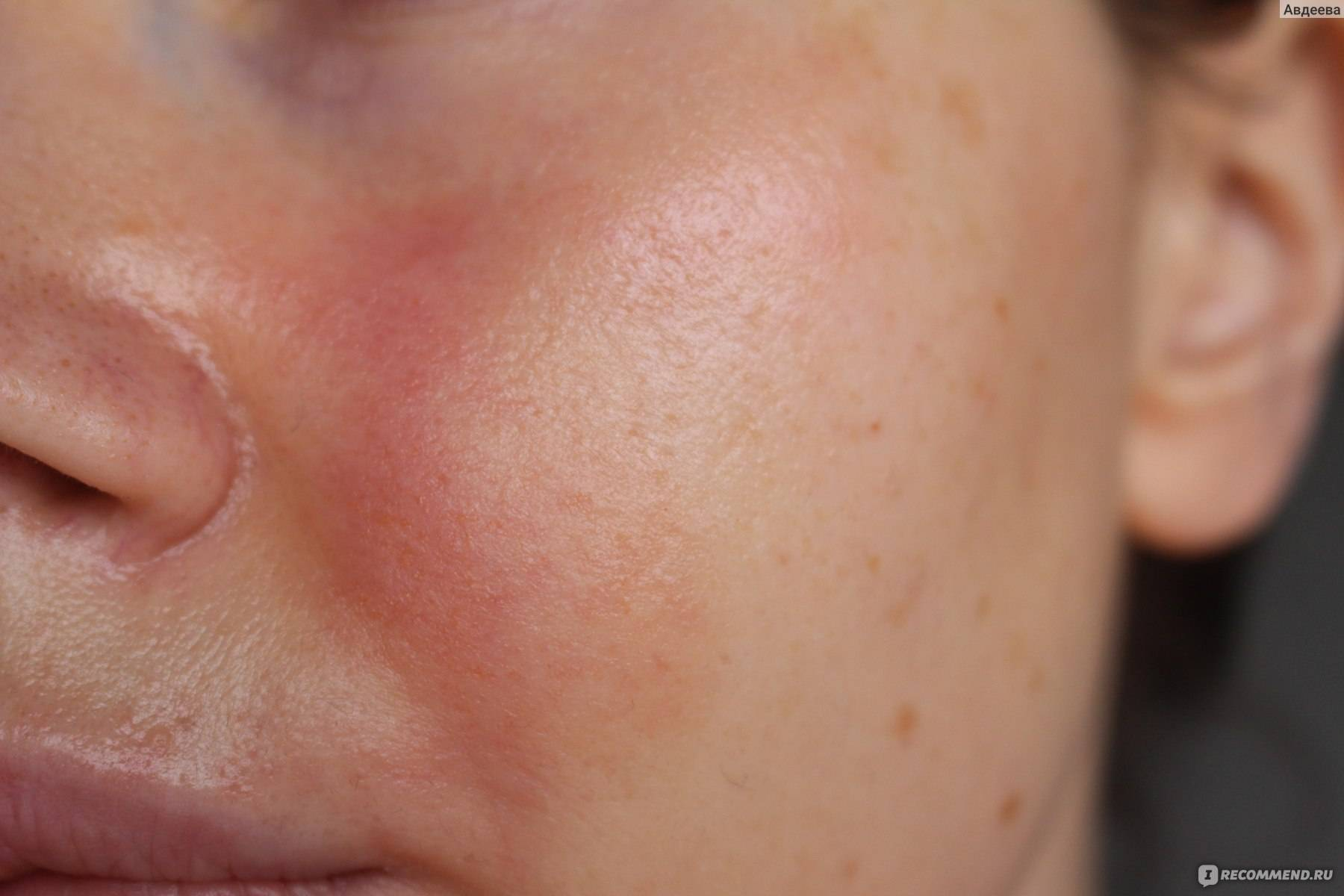 мази для лечение дерматита на лице