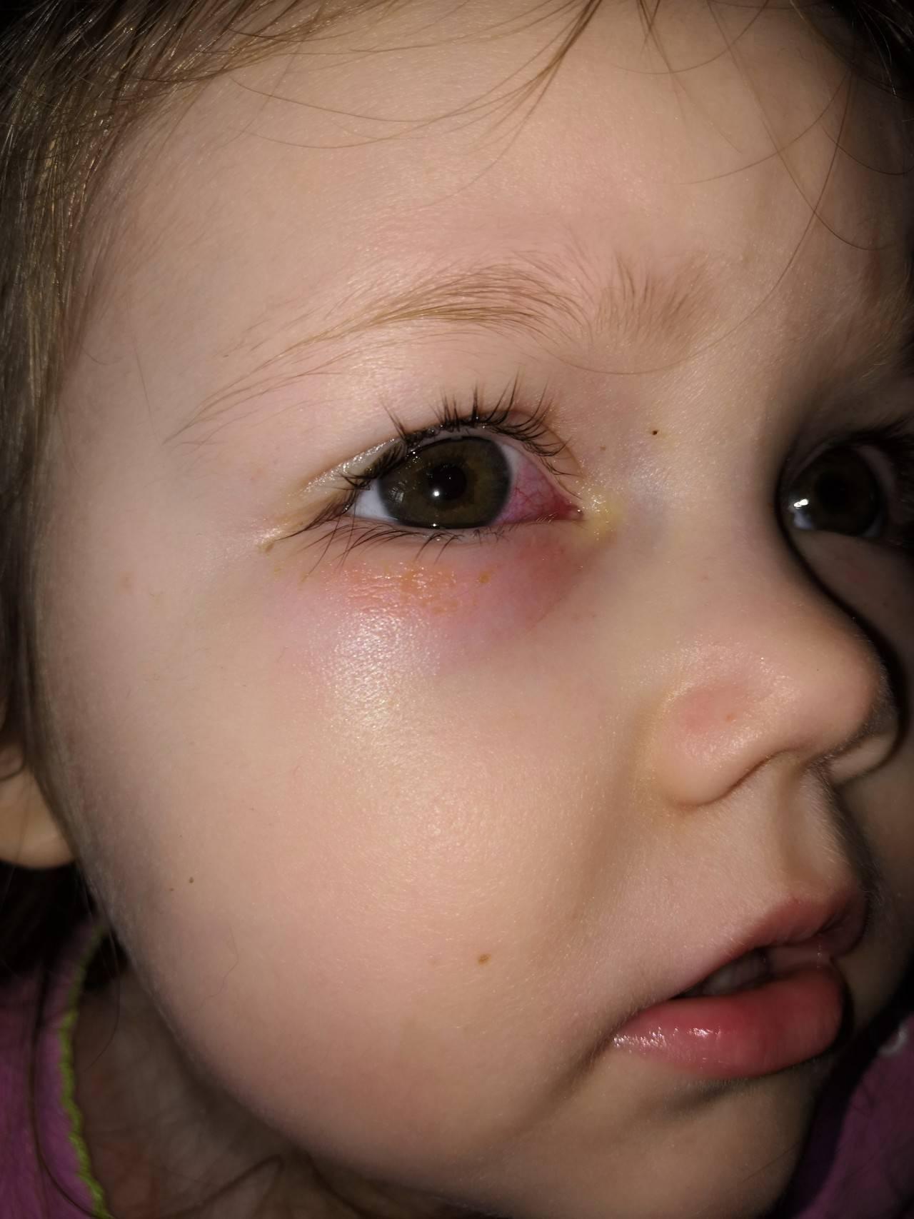 неотложная помощь при ожоге глаз щелочью