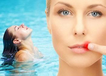 Можно ли мыться при герпесе на лице