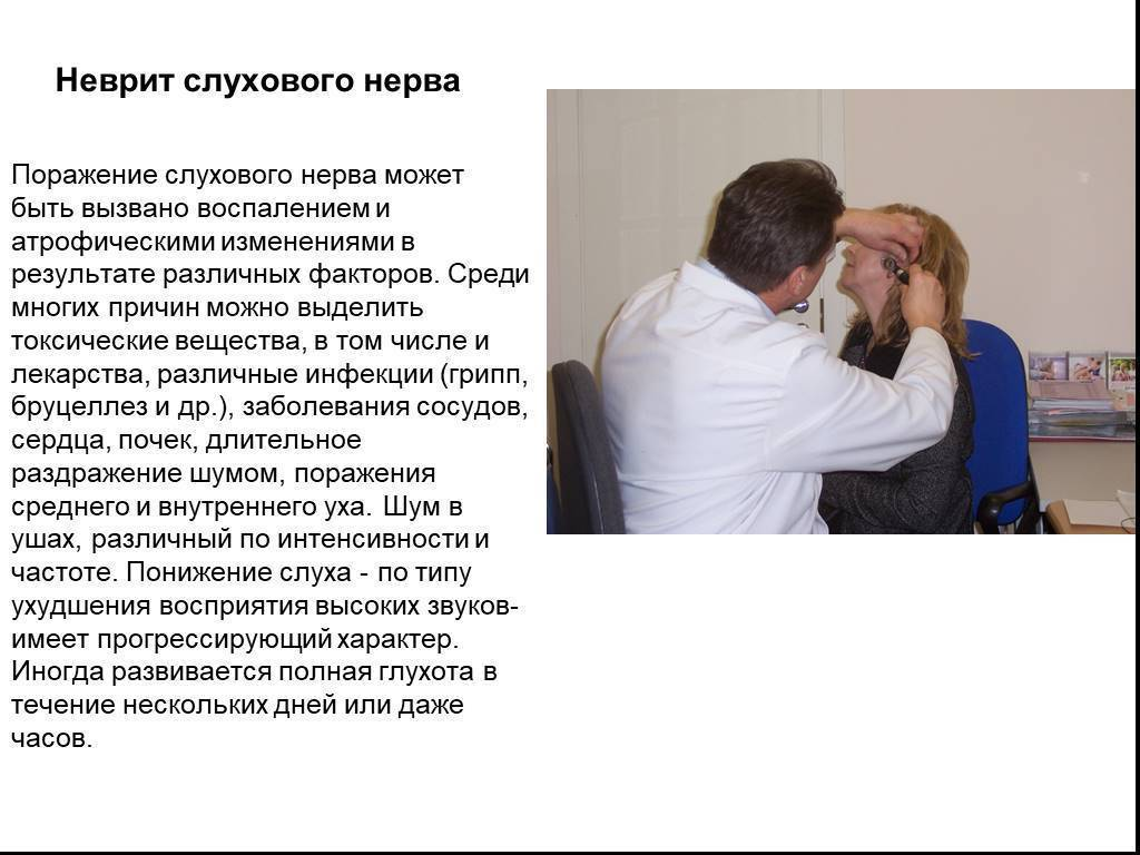 Симптомы и методы лечения кохлеарного неврита слухового нерва