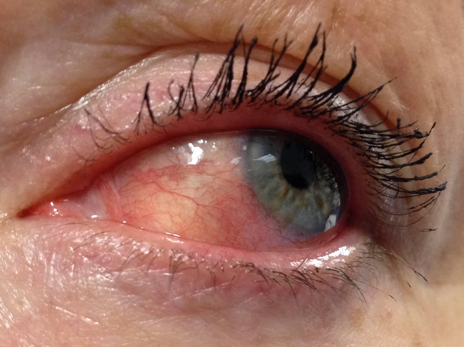 эписклерит симптомы