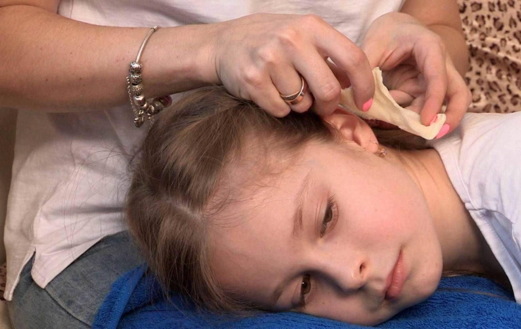 Спиртовой компресс на ухо. как сделать в домашних условиях?