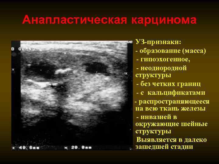 Узел смешанной эхогенности щитовидной железы