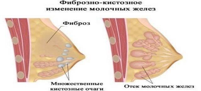 Жировая инволюция и неоднородный фиброз молочной железы