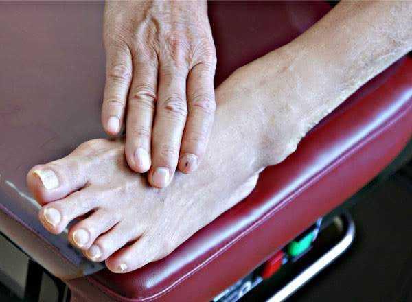 диабетическая полинейропатия нижних конечностей симптомы