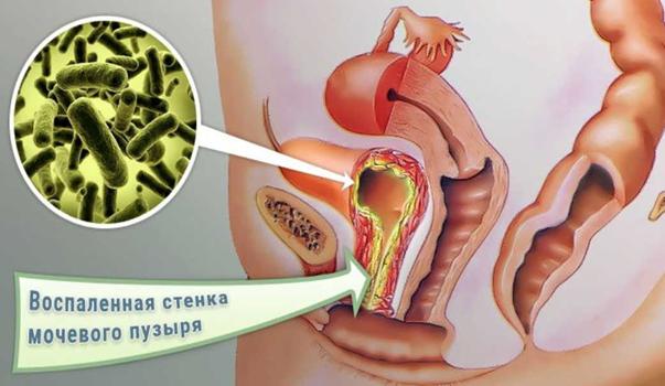 Цистит - лечение в домашних условиях народными средствами и лекарствами